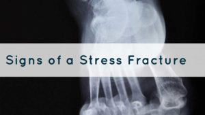 Foot care advice for stress fractures
