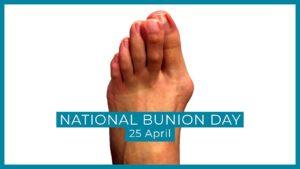 Foot advice for bunion treatments